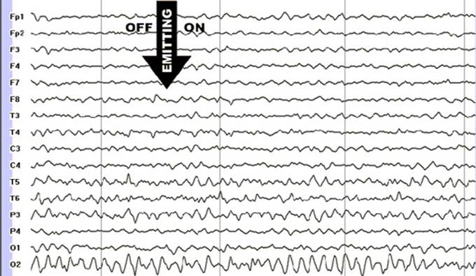 Fig.4. The EEG of a healthy patient. The patient's eyes are closed. Moment of turning the cellular phone on is marked with an arrow. The registration is done on </p>