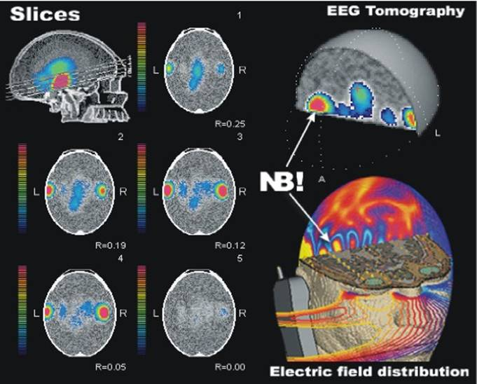 Fig.6. The comparison of probabilistic EEG tomography to the map of a cellular phone's field. Electroencephalograph ExpertTM made </p>